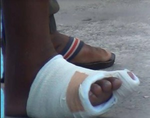 Jason Abdulla's right foot.